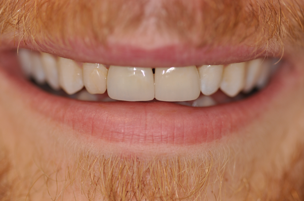 Mass's No 1 Implant, Cosmetic, Restorative & General Dentistry